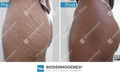 Biodermogenesi®'s copyrighted material
