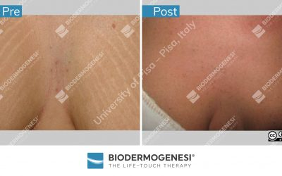Biodermogenesi®: one method many solutions!