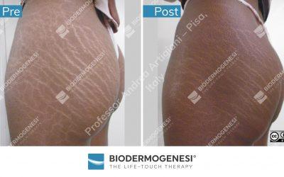 Biodermogenesi®'s copyrighted material