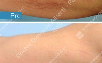 Regenerate your stretch marks with Biodermogenesi®